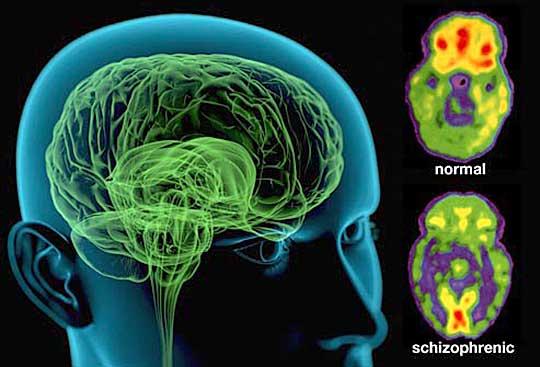 Σχιζοφρένεια - Εύα Καλανζή - Ψυχίατρος Αθήνα